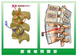 腰 椎 椎 間 関 節