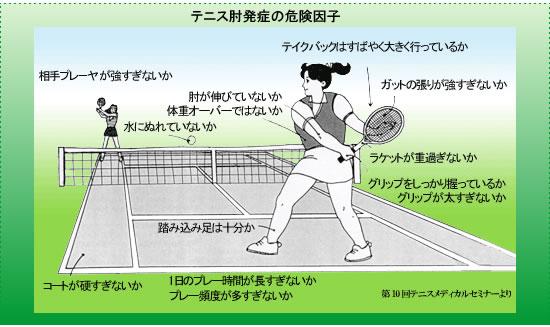 図1:テニス肘発症の危険因子